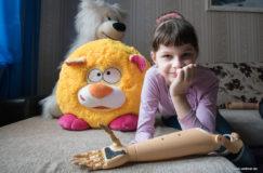 Новая жизнь для девочки, пережившей страшное ДТП. Как белорус делает протезы «круче обычной руки»